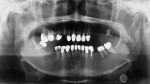 Figure 4. Preoperative panoramic radiograph.