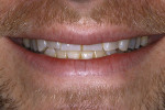 Figure 4. The full smile showed an aberrant incisal plane that did not follow smile design principles.