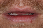 Figure 3. Lips in repose revealed a lack of incisal display. The patient desired more incisal tooth display.