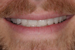 Figure 15. The patient's smile showing harmonious tooth lengths that follow the natural curvature of the lower lip.