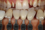 Figure 3 - Custom shade tabs ascertained gingival and incisal color as well as surface texture.