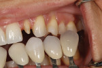 Figure 4 - Custom shade tabs ascertained gingival and incisal color as well as surface texture.