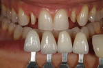 Figure 5 - Custom shade tabs ascertained gingival and incisal color as well as surface texture.