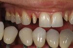 Figure 6 - Custom shade tabs ascertained gingival and incisal color as well as surface texture.