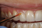 Figure 33 - Lustre pastes were applied to the gingival and incisal one-third areas indicated.