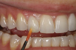 Figure 34 - Lustre pastes were applied to the gingival and incisal one-third areas indicated.