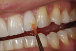 Figure 42 - A final touch up for tooth No. 10 was made to the area indicated.