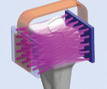 Figure 2 S-Ray technology places ultrsound sending and receiving units on either side of the teeth.
