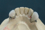 Figure 3 Mandibular cast with Sagix attachment crowns after the anteriors were restored.