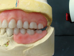 Figure 8  Left posterior interocclusal space after the occlusal record has been removed.