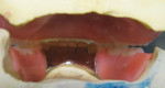 Figure 14 Occlusal view of interocclusal space before requested reset Curve of Spee changes.