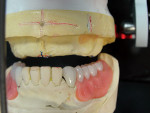 Figure 13 View of the maxillary complete denture working space for tooth arrangement. The vertical red line is the existing length of centrals, and the blue line is a reference for raising the anteriors by 1 mm.