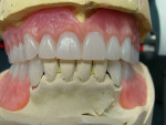 Figure 20 Occlusal view of the maxillary complete denture showing lingualized cusps contacts and no anterior contact in centric occlusion.