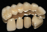 Figure 6 The completed Cercon ht restorations before delivery to the dentist.