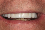 Figure 4 Close-up view of the Radica provisional restorations with the patient in natural smile.