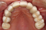 Figure 7 Postoperative occlusal view of the definitive Cercon ht zirconia restorations.