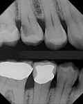 Figure 1 An extensive radiographic carious lesion on the distal aspect of tooth No. 4