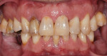 Figure 1 Pretreatment condition of the natural dentition.