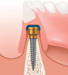 Figure 1 The LODI System is a less-invasive, predictable, and durable implant-retained option for overdenture restorations with a dramatically reduced vertical height compared to 0-ball mini implants.