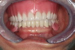 Figure 10 Wax denture and partial at final try in appointment.