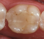 Figure 2  Preoperative clinical condition of tooth No. 19 with fractured distal marginal ridge.
