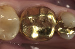 Figure 8  Preoperative clinical condition of a gold crown with a perforation in the occlusal surface enrolled in the clinical study on e.max CAD crowns.