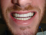 Figure 4 The patient desired to have a longer, fuller smile with a normal overbite.