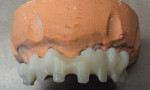 Figure 5 Secondary structure, occlusal view.