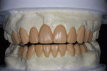 Figure 4 A diagnostic wax-up was completed to address both esthetic and functional concerns.