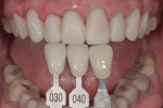 Figure 5 A photograph with shade tabs communicated the desired color of the final restorations to the laboratory.