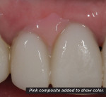 Figure 7 A gingival deficiency between teeth Nos. 7 and 8 required the use of pink ceramic. A pink composite piece was fabricated chairside to communicate the color and size of the desired papilla.