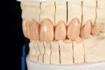 Figure 11 and Figure 12 A silicone matrix of the provisional restorations was placed on the working model and a wax injection process was used to transfer the shape, form, and position of the provisional restorations to the final wax-up. The injection was then refined to achieve the final full-contour wax-up.