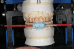 Figure 10 The stick bite was used to verify the vertical midline of the initial wax injection.