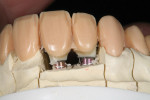 Figure 21 The incisal area was cut back to allow room for micro-layering of the incisors.