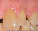 Figure 5  Class V composite restoration on tooth Nos. 9 and 10 associated with plaque-induced gingivitis in a patient with poor oral hygiene.