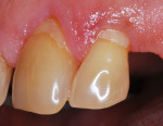Figure 6  The same patient in Figure 5 had undergone oral hygiene instructions along with scaling and root planing. Note that the inflammation has receded and the gingiva is healthier.