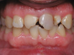Figure 11 - This patient presented with crowding and fractured teeth due to trauma. Orthodontics were performed to correct crowding, and internal bleaching was done on tooth No. 9 and laminates were placed on teeth Nos. 8 and 9.