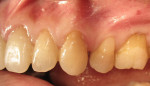 Figure 7  Tooth No. 13 has a composite restoration. Plaque has accumulated on the cervical areas of the adjacent teeth except on the restoration. No inflammation is seen adjacent to the restoration.
