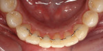 Figure 6 - Because the patient was a class 2 orthodontic patient with sufficient maxillary space, she could wear a fixed lingual retainer.