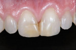 Figure 1 - Preoperative view of a patient with discoloration on teeth Nos. 7 and 8 who would receive conservative composite restorations using a simplified composite system.