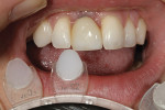 Figure 2 - A GC shade tab was used to match the incisal one third.