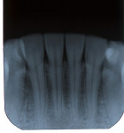 Figure 5   Trauma-related TAB of lower right central incisor. Note color change of incisor (Fig 4). Radiograph of same tooth exhibiting apical surface root resorption with apical pulp obliteration (Fig 5).
