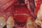 Figure 10 The Guidor barrier was extended to cover the labial graft extending to the palate.