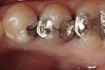 Figure 1 Preoperative photograph of failing amalgam restorations on premolars.