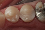 Figure 2 Immediate postoperative view of Class II restorations restored with a bulk-filled composite resin.