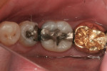 Figure 8 In a separate case, tooth No. 19 had a failing amalgam with recurrent decay and required a full-coverage indirect restoration.