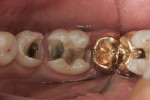 Figure 9 The old amalgam and recurrent decay were removed.