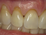 Figure 6 Teeth Nos. 7 and 8 present with abfractions that were of cosmetic concern to the patient.
