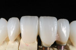 Figure 7 High translucency IPS e.max restorations were made over abutments and natural teeth.