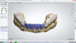 Figure 21 Digital design used to create bite opening provisional restorations overlaying posterior teeth. Restorations were milled from PMMA.